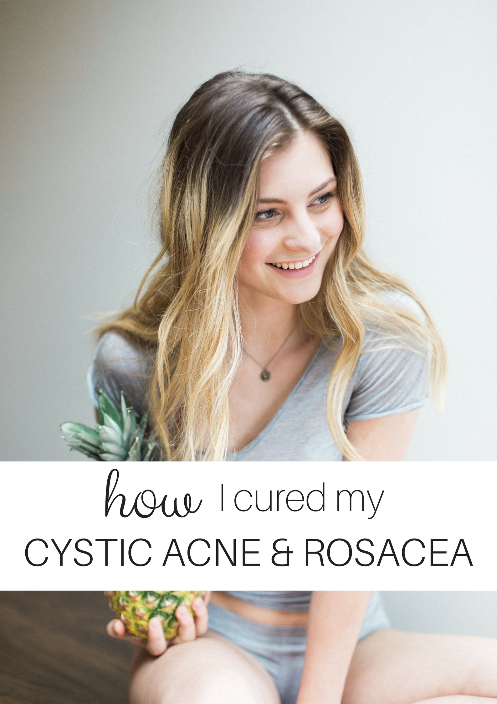 How I Cured my Cystic Acne & Rosacea